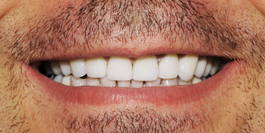Dentist Gainesville GA: Family & Cosmetic Dentistry | Dr. Jason Croft - image-content-after1