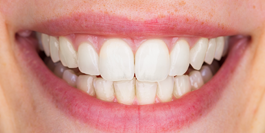 Dentist Gainesville GA: Family & Cosmetic Dentistry | Dr. Jason Croft - image-content-after2