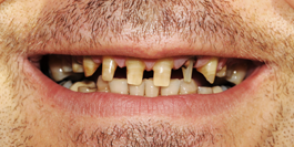 Dentist Gainesville GA: Family & Cosmetic Dentistry | Dr. Jason Croft - image-content-before1