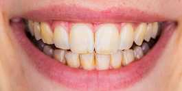 Dentist Gainesville GA: Family & Cosmetic Dentistry | Dr. Jason Croft - image-content-before2